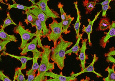 Human cervical cancer (HeLa) cells